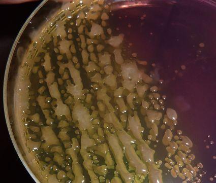 Le sang sur les parasites à jeun